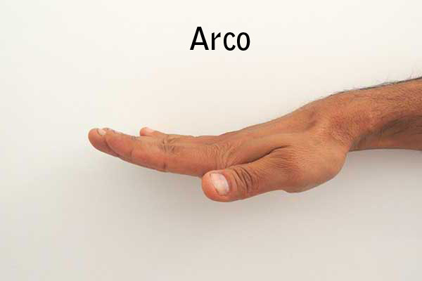 Arco1